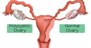 بیماری سندرم تخمدان پلی کیستیک