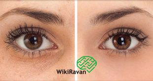درمان گوری زیر چشم