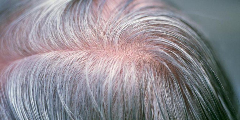 روانشناسی ارتباط استرس با تغیر رنگ مو ها