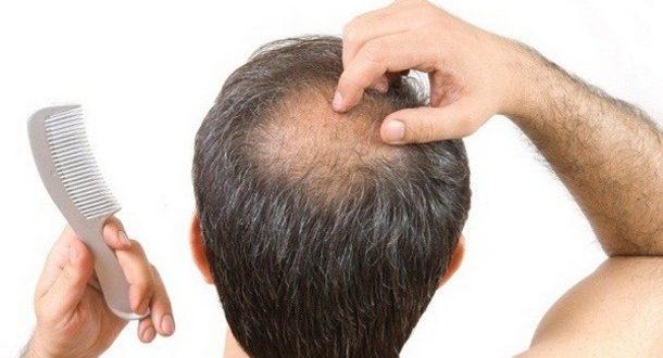 ریزش مو سکه ای در مردان