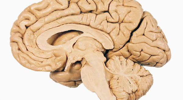 خوراکیهای ضد مغز