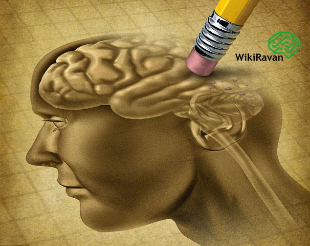 مغز پیر