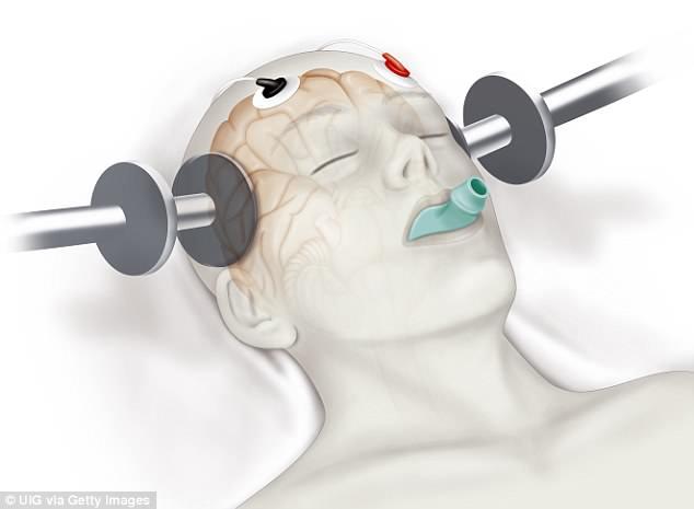 کاربرد الکتروشوک درمانی