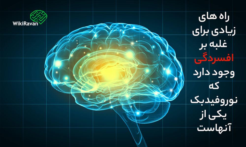 درمان-افسردگی-با-نوروفیدبک